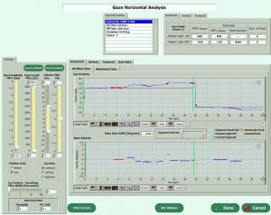VEST™ operating and neurotologic analysis software screenshot.